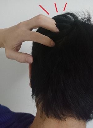 育毛の効果