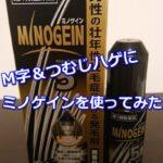ミノゲインの薄毛への効果を検証!効果的な使い方と口コミ・評判を調査