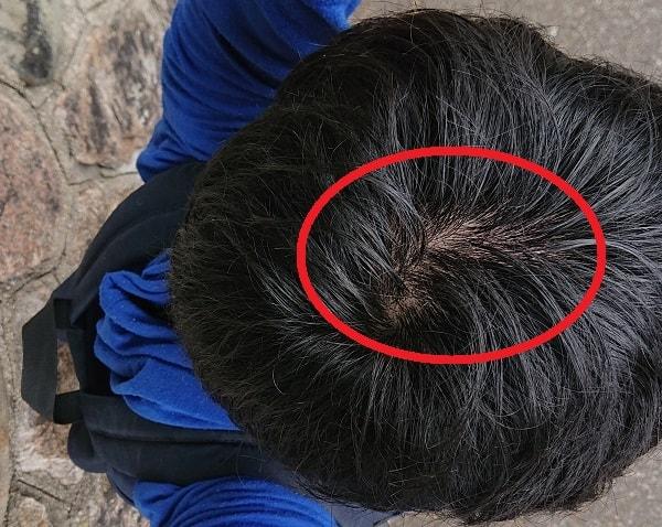 頭頂部の薄毛